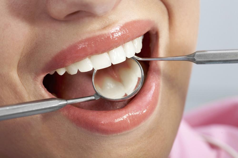 Implanty zębowe rodzaje – najważniejsze informacje